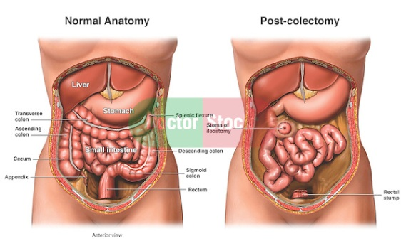 Bowel Surgery - Colectomy (Colon Removal) with Ileostomy